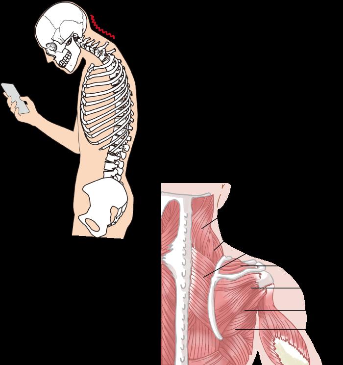 肩甲骨からアプローチして肩こりを改善