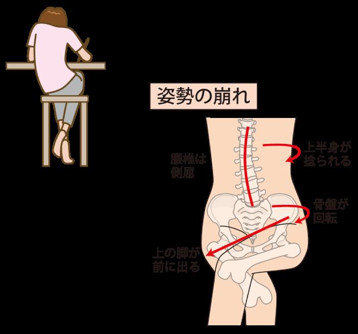 腰痛、骨盤、姿勢