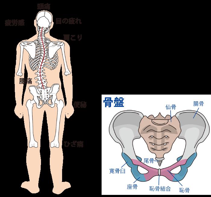 坐骨神経痛、骨盤の歪み